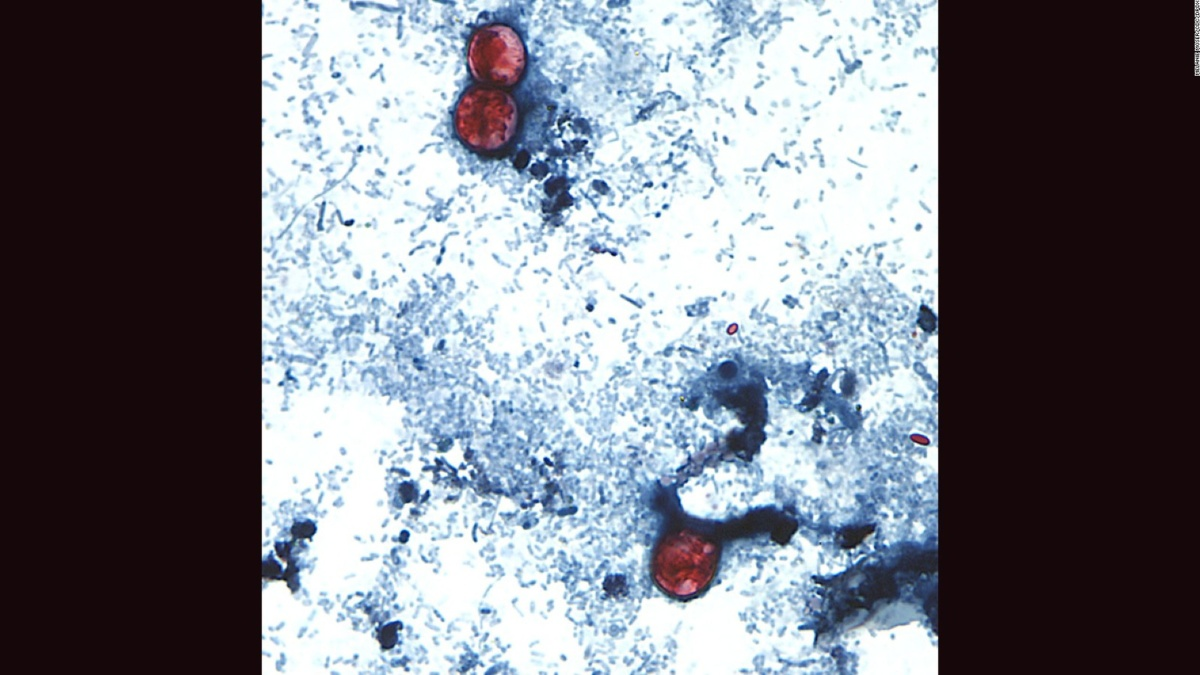 Parasitic cyclospora infections up 134% this summer