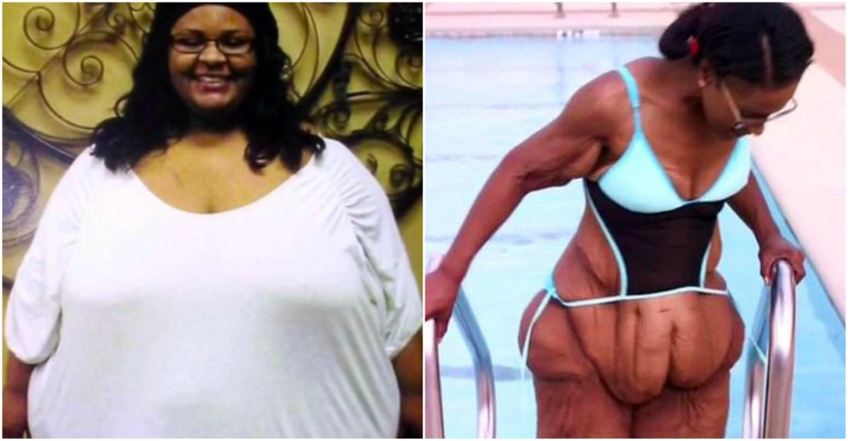 Woman Who Lost 200 lbs Is Unrecognizable After Having Mounds Of Saggy Skin Removed