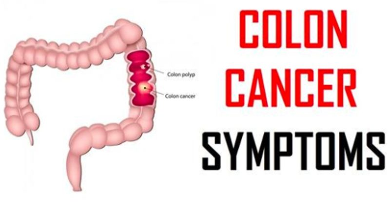 Colon Cancer Survival Rate Is 92% When Caught Early  Dont Ignore These 5 Early Warning Signs