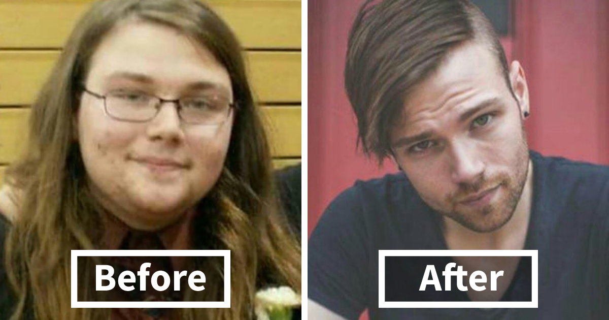 50+ Amazing Before & After Pics Reveal How Weight Loss Affects Your Face