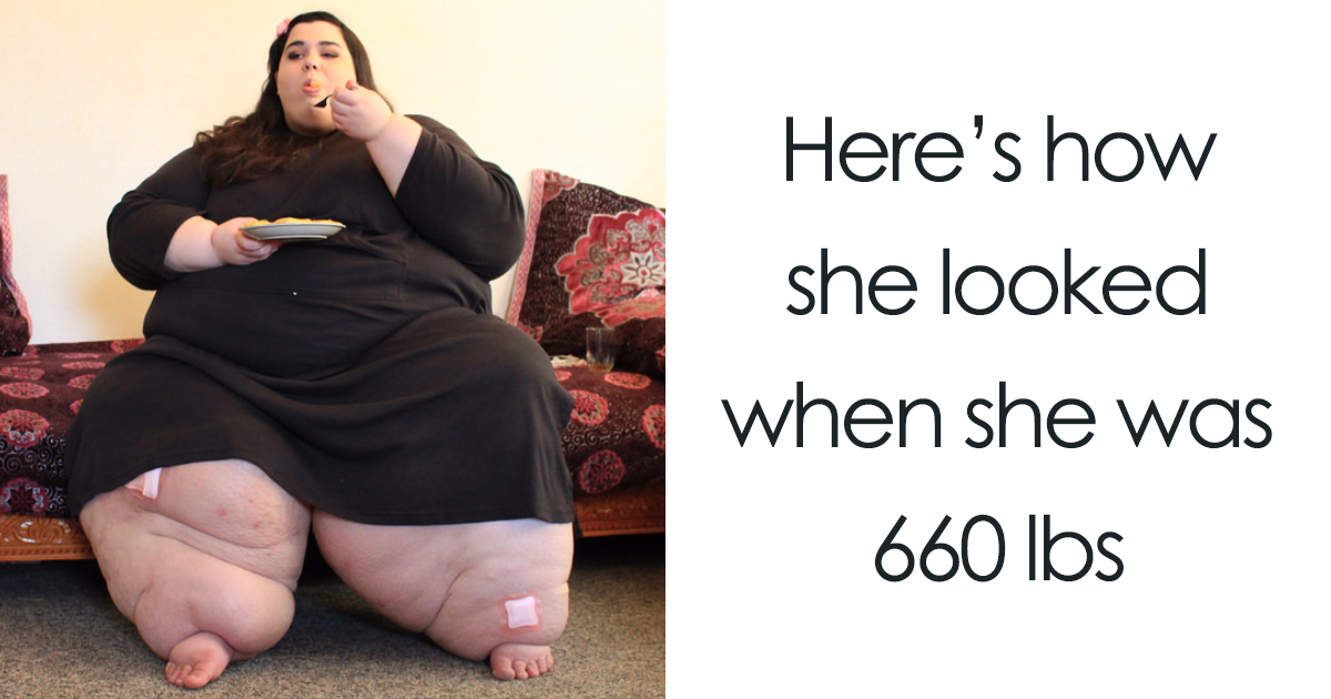 26 Unbelievable Before & After Transformation Pics From 'My 600 Lb Life' That Show If They Could Do It, So Can You