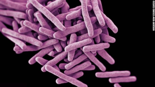 Possible release of tuberculosis bacteria investigated in Baltimore