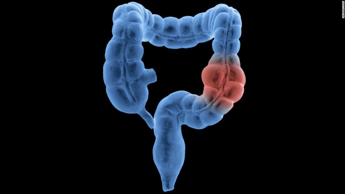 Colon cancer misdiagnosis in younger adults is a concern, study suggests