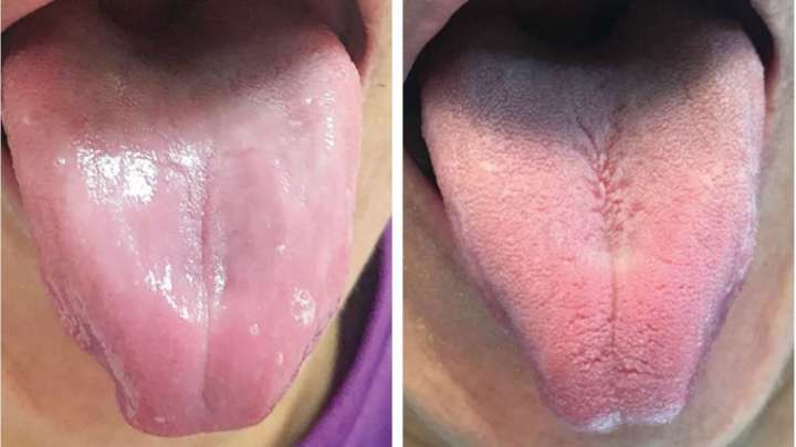 This Man's Tongue Lost Its Taste Buds And Became Completely Smooth